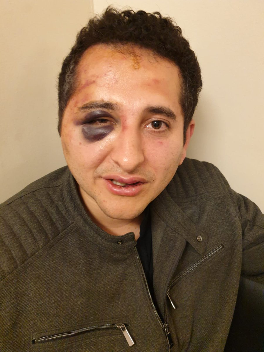 Çırağan Sarayında koruma işkencesi:  Erdoğan'ın korumaları, yolun neden kesildiğini soran avukatı koruma aracına aldı  Elleri arkadan kelepçelendi, gözleri bağlandı  2 saat darp edildi  Yetmedi, zorla tutanak imzalatıldı, CBye hakaretten ev hapsine alındı  http://www.cumhuriyet.com.tr/haber/turkiye/1347204/Avukata_dugun_dayagi.html…
