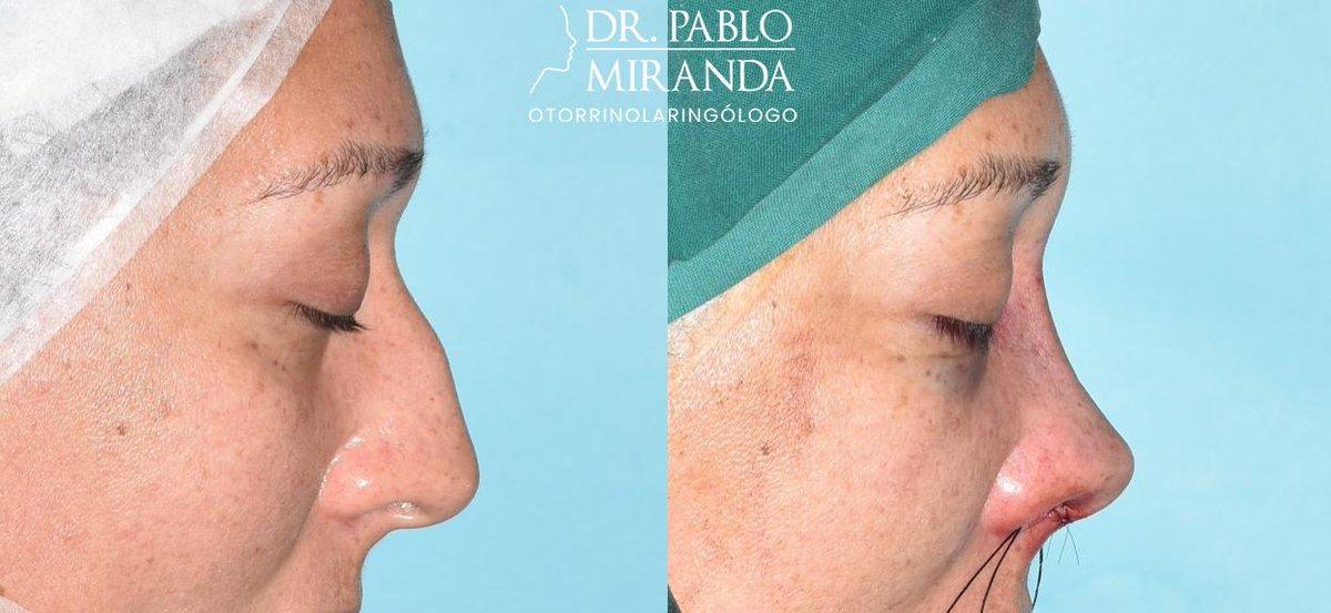 operacion septoplastia y turbinoplastia
