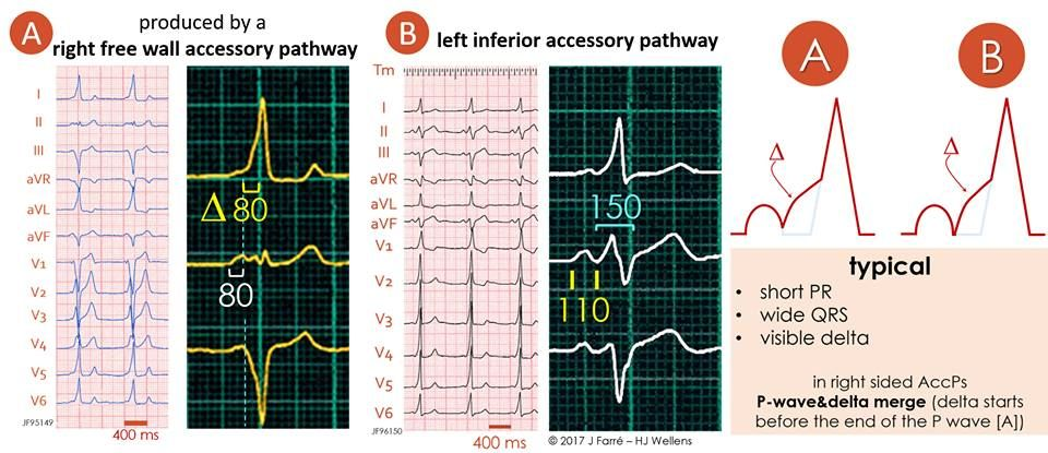 Typical preexcitation in right-sided and left-sided accessory pathways ☝️👌🔍 Learn more: https://buff.ly/2V3amUi  #CardioEd #ECGlovers #FOAMed #ECG #cardiotwitter