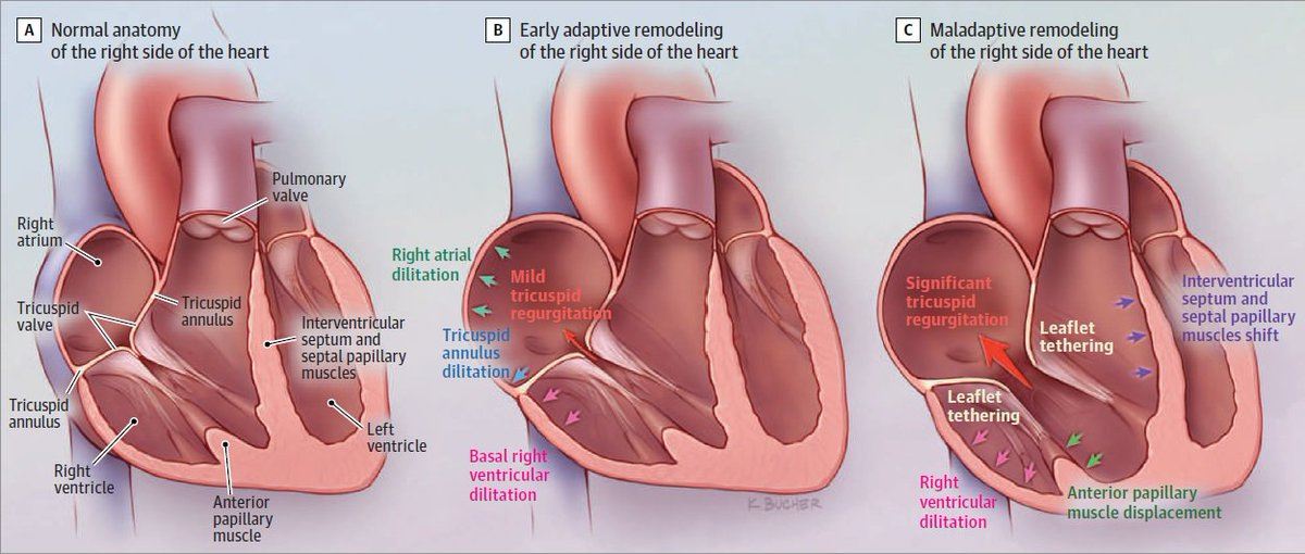 The 4 causes of functional tricuspid regurgitation: 1. Postcapillary pulmonary hypertension 2. Precapillary pulmonary hypertension 3. Right ventricular dysfunction 4. Idiopathic @hahn_rt https://ja.ma/2VSftUz