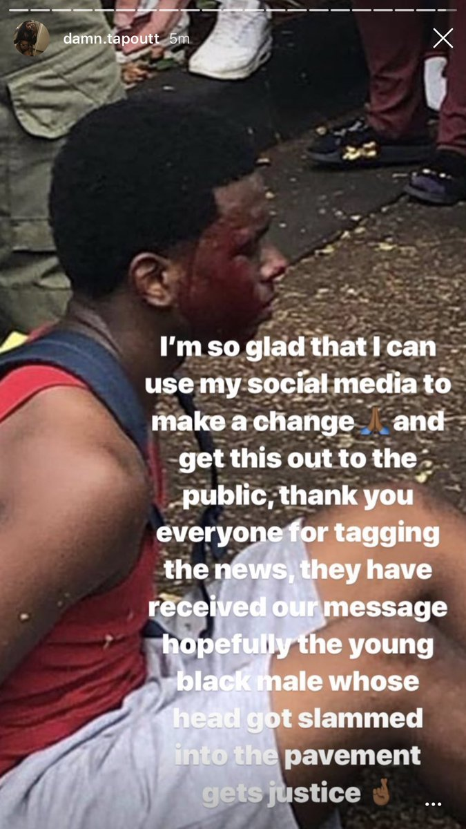 Yall BUGGING. Looks at this young man's FACE! Are yall serious?! @browardsheriff @BrowardCounty @browardschools<br>http://pic.twitter.com/f9L6HtLMJT