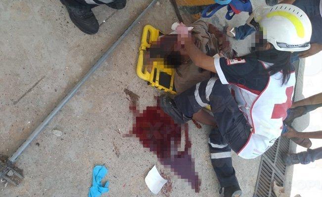 Le explota tanque a un empleado en gasera de #Altamira #Tamaulipas. #LaRoja https://voxpopulinoticias.com.mx/2019/04/le-explota-tanque-a-un-empleado-en-gasera-de-altamira/…