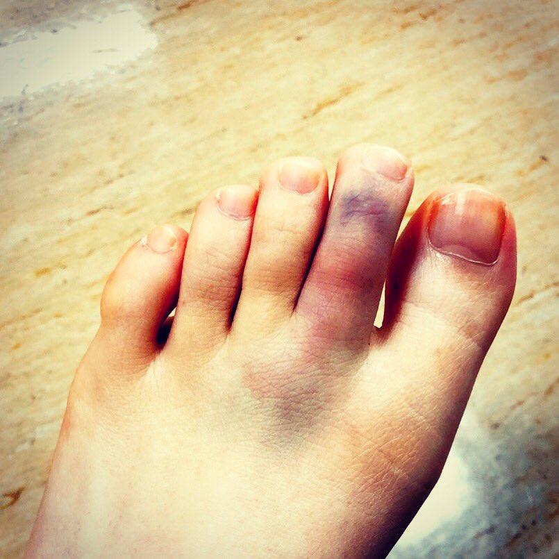 親指 骨折 足