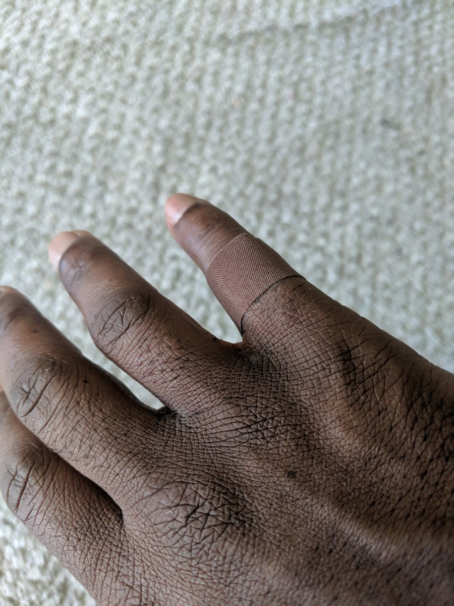 【NO!!黒人差別】自分の肌の色と異なる肌色バンドエイド…根深い白人至上主義の中、黒色バンドエイドが発売されて涙