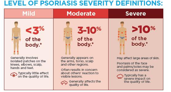 psoriasis severity classification