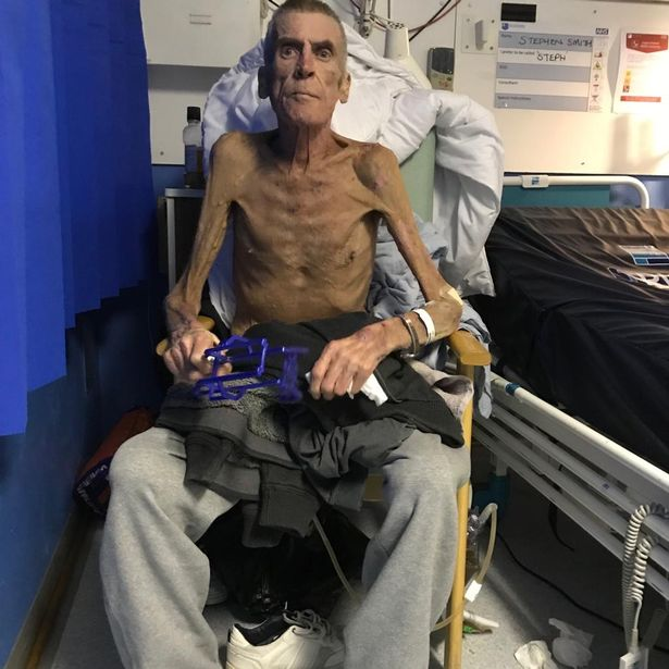 This is Steve Smith. He was declared &#39;fit for work&#39; and thrown off his disability benefits by the Tory DWP.  He eventually won his appeal against this barbarity, but he died on Monday.  I hope all you Tory voters out there are proud of yourselves. <br>http://pic.twitter.com/iqS7cZDMGo