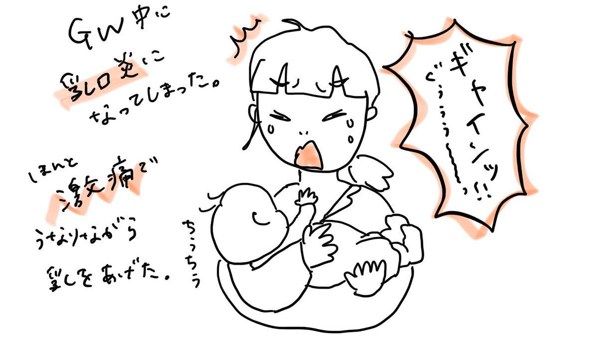 白斑 乳腺 炎