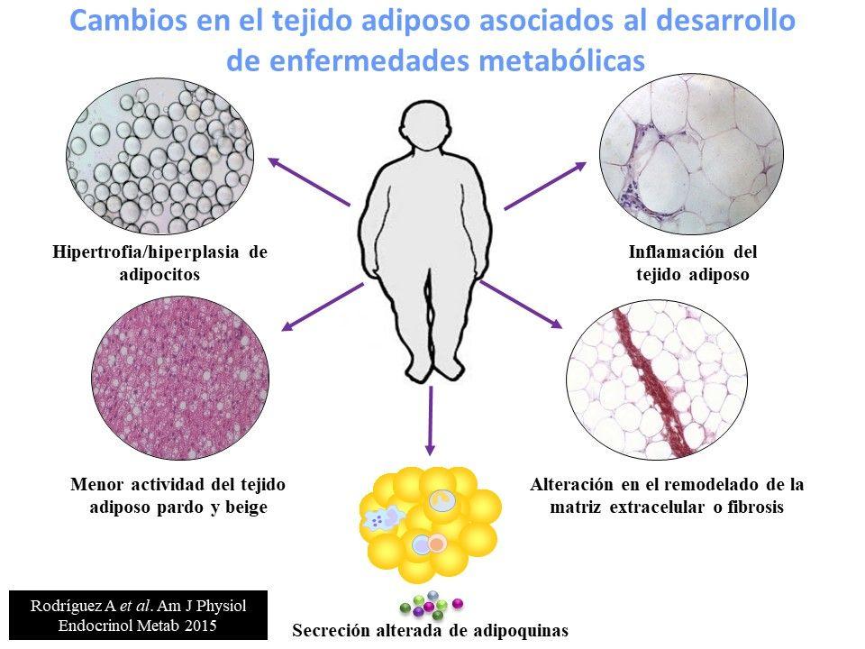 tejido de diabetes