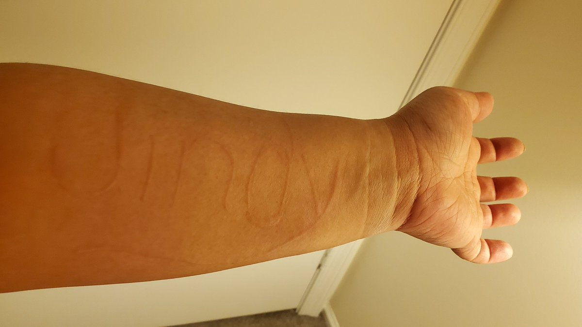 Dermatographia tagged Tweets and Downloader | Twipu