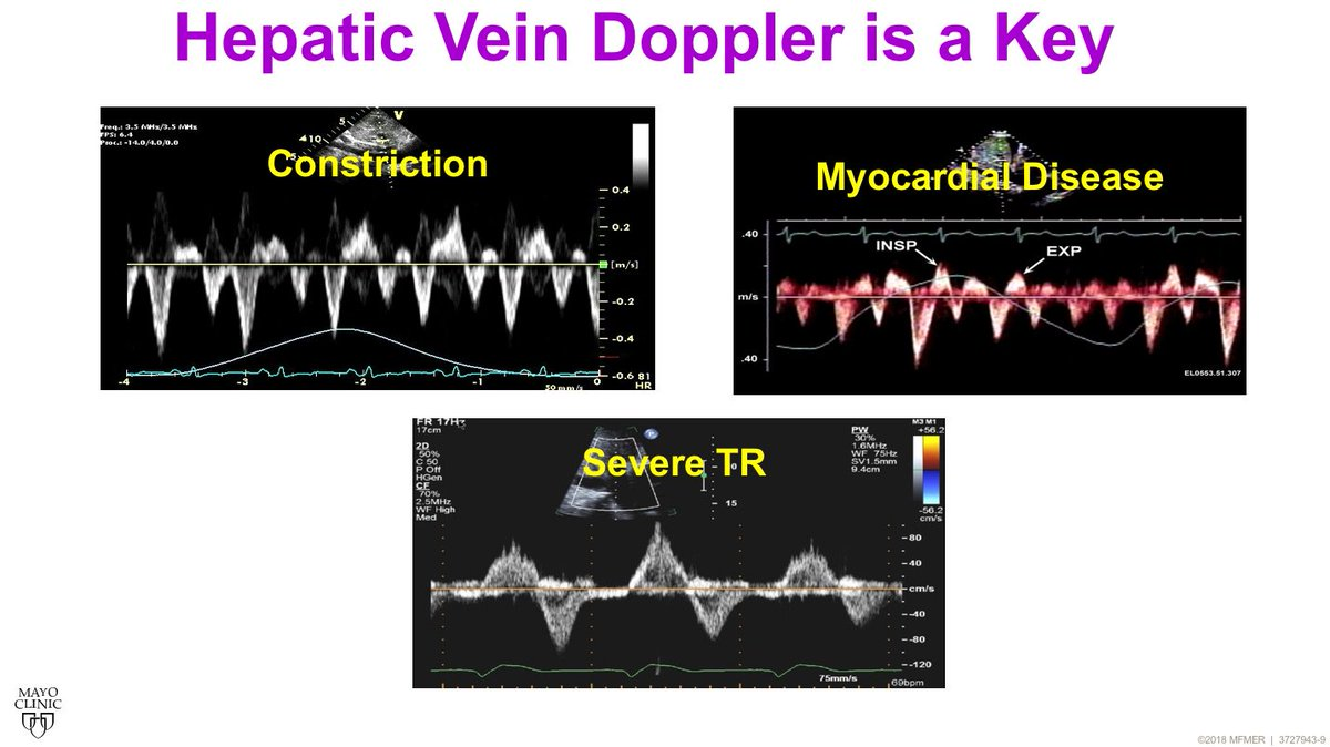 Value of hepatic vein Doppler in right heart failure with @JaeKOh2 #MayoEchoBRC #Echofirst @MayoClinicCV @ASE360