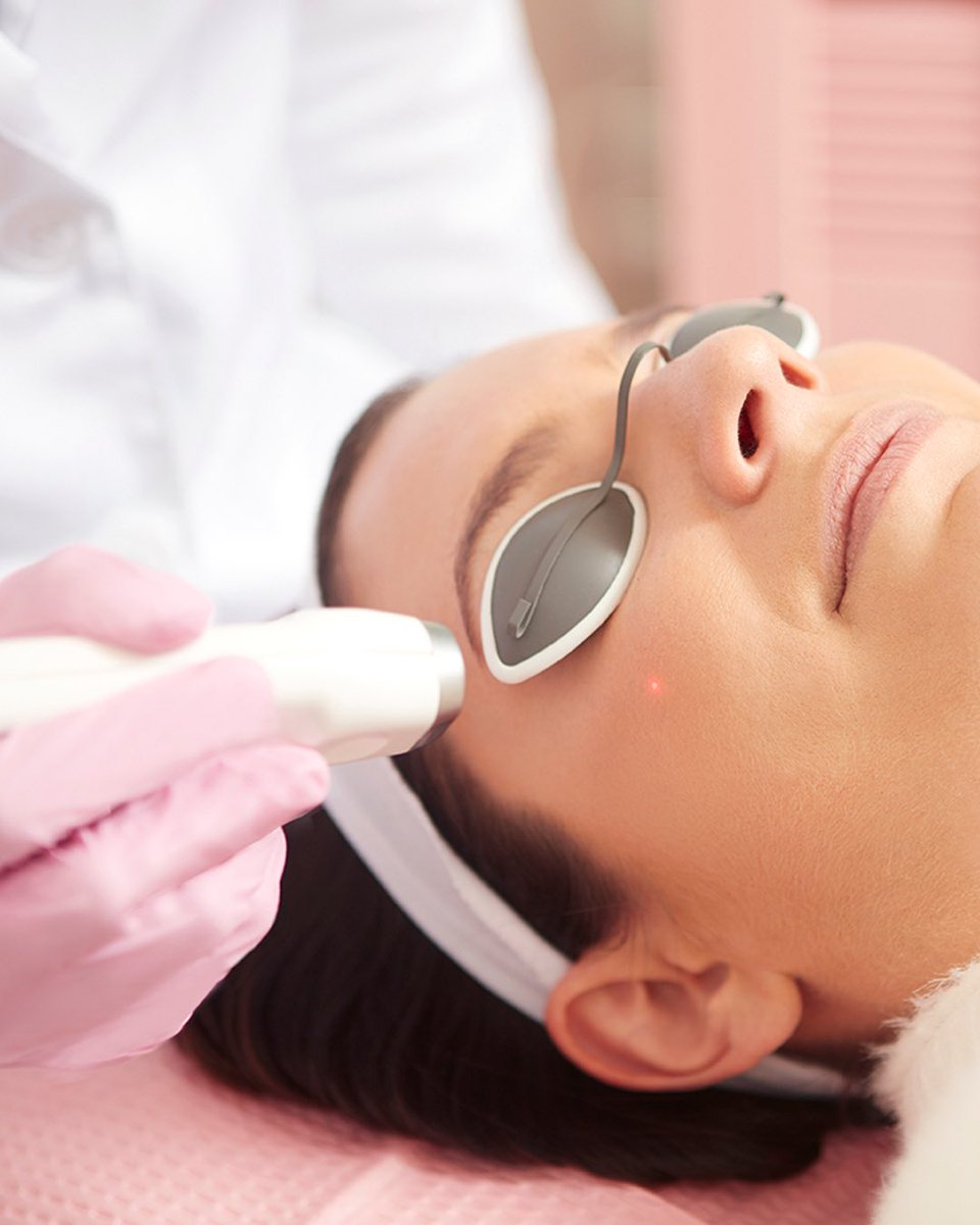 Medical info on facial laser treatment — 2