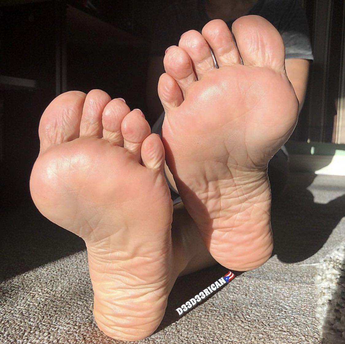 Gross ugly feet