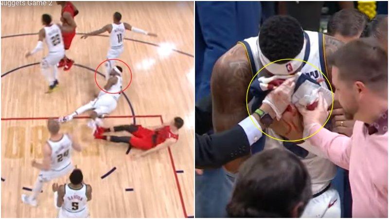 【影片】滿臉是血!Craig撞到隊友腿部鼻樑骨折離場,拓荒者官推:希望Craig沒事!