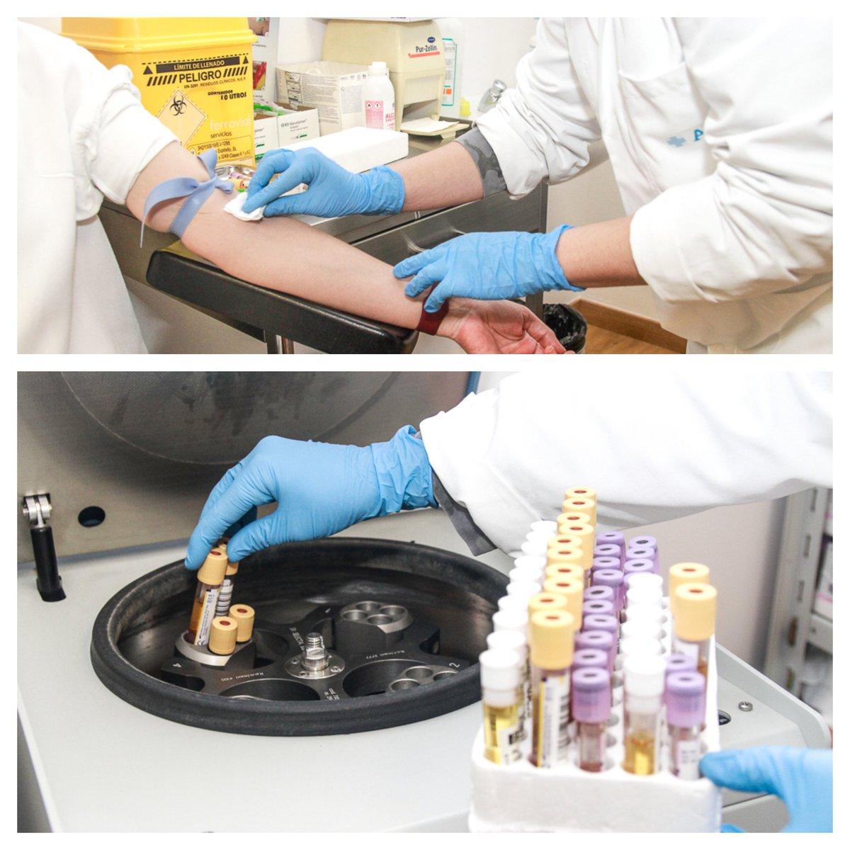 test Twitter Media - Hoy, en nuestro post sobre #LaPrevencionReal: Las extracciones de sangre y preparación de muestras para laboratorio son acciones habituales en nuestros centros y de especial relevancia para la #detección de posibles problemas de salud. #28PRL #ASPY28Abril https://t.co/ZqBKcKWOHC