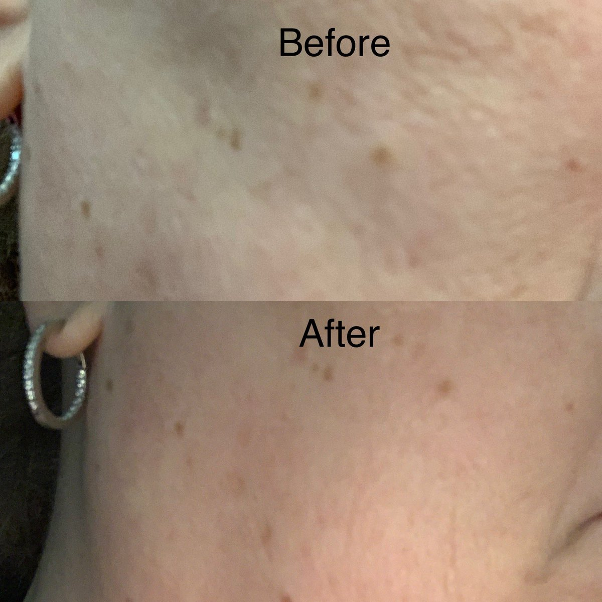 Before & after pictures of applying Pure Cannaceutical Hemp Serum to my 53 yr old face. Stays soft & smooth all day long. $39 a bottle Did you know your skin absorbs the CBD?  Come try it! #wrinkles #dryskin #finelines #moisturizer #purecannaceutical @miragespa.stlouis.hottubs https://t.co/kdV74F9dIM