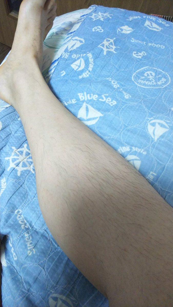 1枚目の足(脱毛済)見たら体毛薄いと思いますよね。だがしかしモモ裏が毛深いのです(笑)ギャップーもうちょっと毛薄くしたい!!
