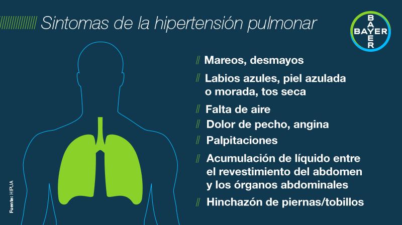 Mareo hipertensión pulmonar