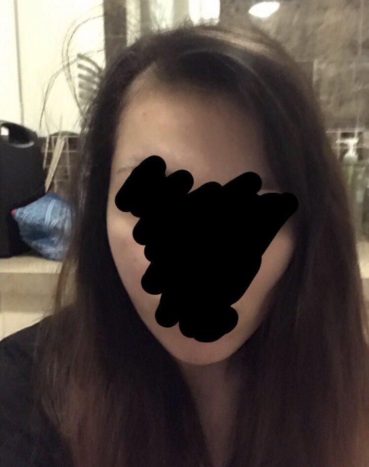 体調記録することにしたツイタ?心身共に落ちた時には初めて隠しても浮くくらいハゲた産後の抜け毛やと思ってたけど美容院でこれは産後の抜け毛じゃない脱毛症やて言われた1ヶ月前しかし薬のおかげか今はだいぶチクチク生えてきたよかった笑