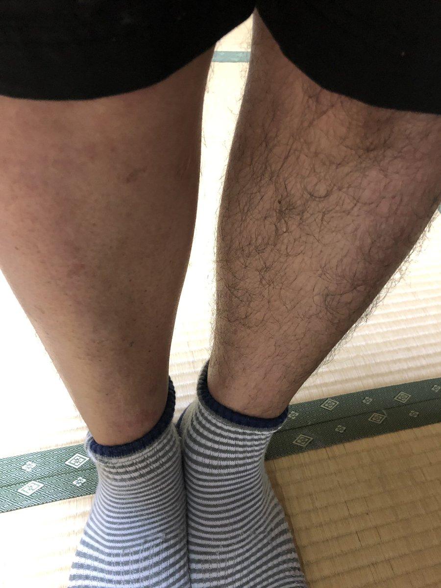 ロケで時間がなく片足だけ脱毛。短パンの季節になにやってんだ!!#ばりすご8