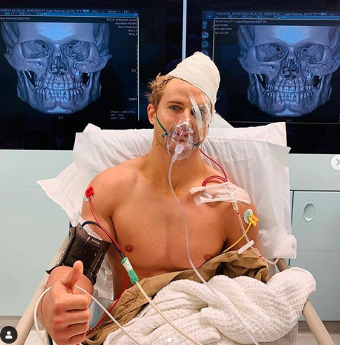 "From @arielhelwani   ""Sage Northcutt just posted on IG that he came out of a nine-hour surgery. Suffered 8 fractures in his face as a result of that KO loss yesterday""  😱😱😱 #ONEChampionship"