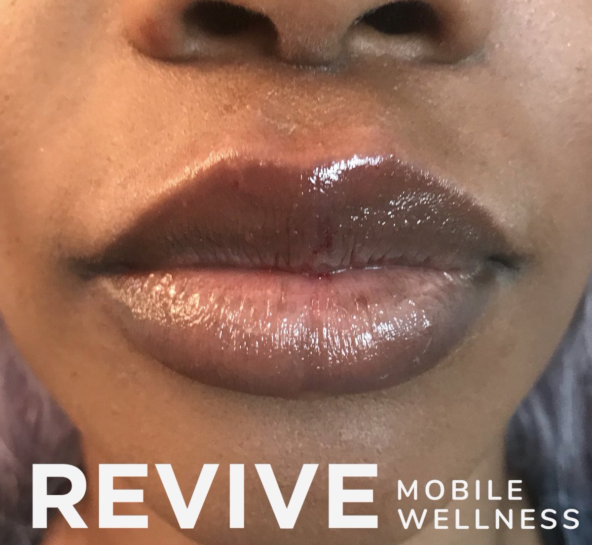 REVIVE mobile wellness (@ReviveMobile) | Twitter