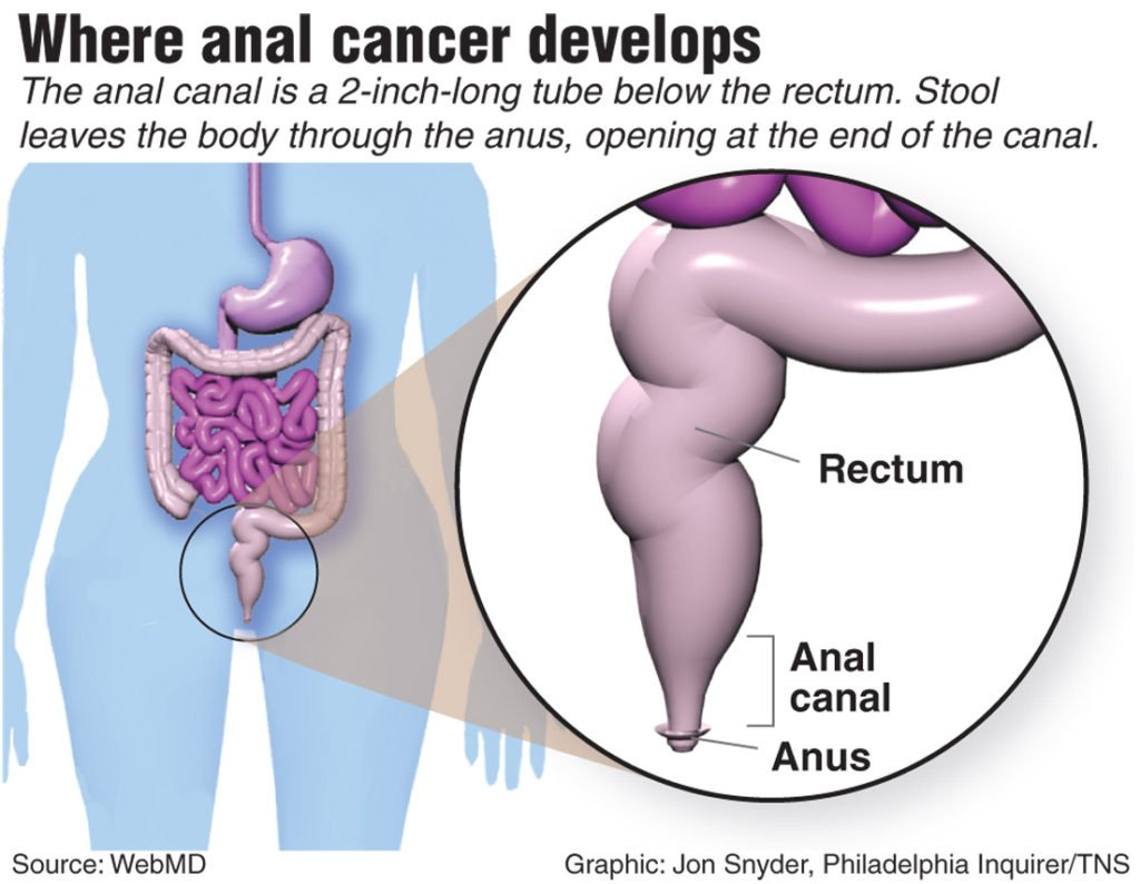 Everything You Need To Know About Anal Cancer Colon Surgeons Of Charleston