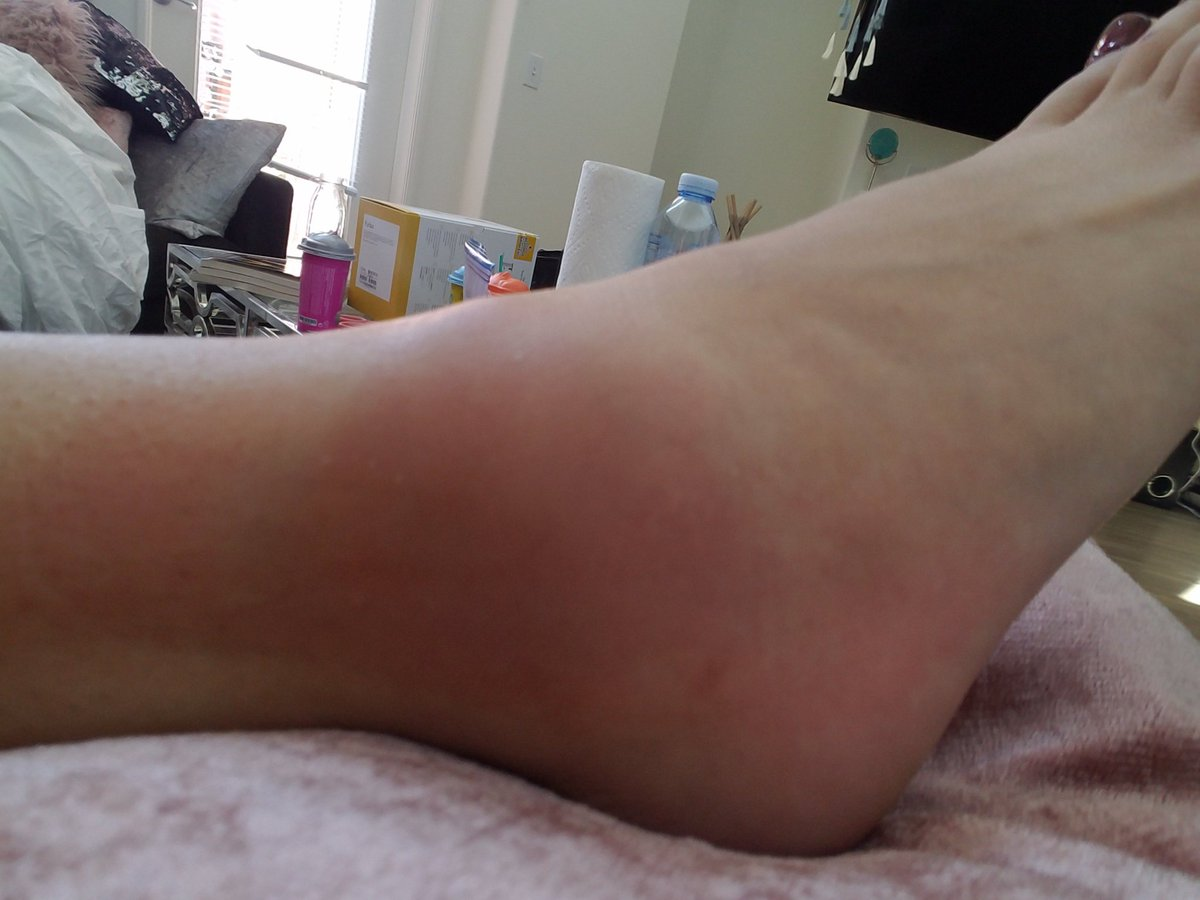 test Twitter Media - Fucked up my ankle last night I need weed delivered https://t.co/dHZN8juBje