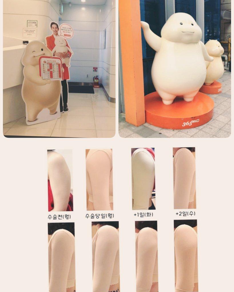 韓国 脂肪吸引