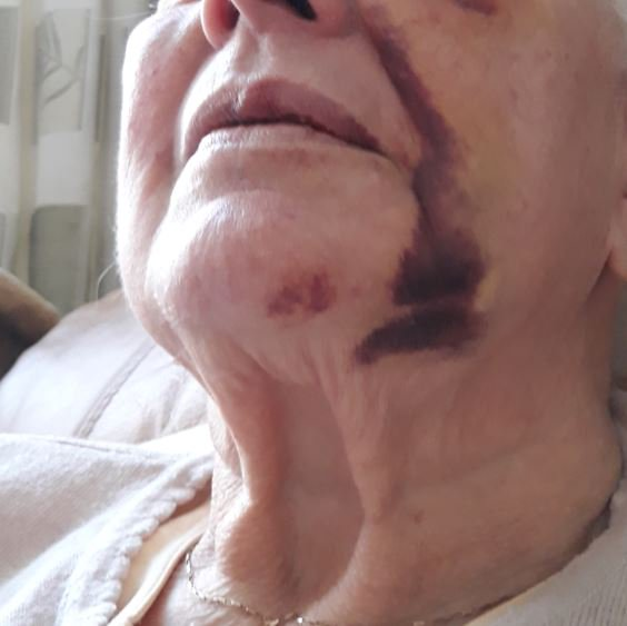 Officers investigating a robbery which left a #Gateshead pensioner with a fractured eye socket have appealed to the public for information.  Can you help with the ongoing investigation? More details below - please get in touch! @npgateshead