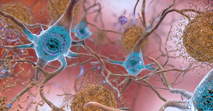 Our call for Alzheimer's disease papers starts today. We're working with a panel of highly experienced Guest Editors to publish and promote your latest research toward earlier diagnoses and effective treatments https://plos.io/2H5ahX6 #Alzheimers