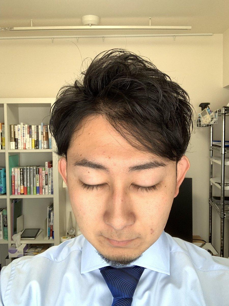 若はげ 髪型