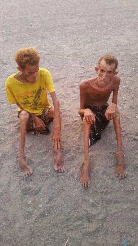 Before our very own eyes. This is in Yemen and they have been heavily stricken by famine for more than four years now. We cannot turn a blind eye to their sufferings.