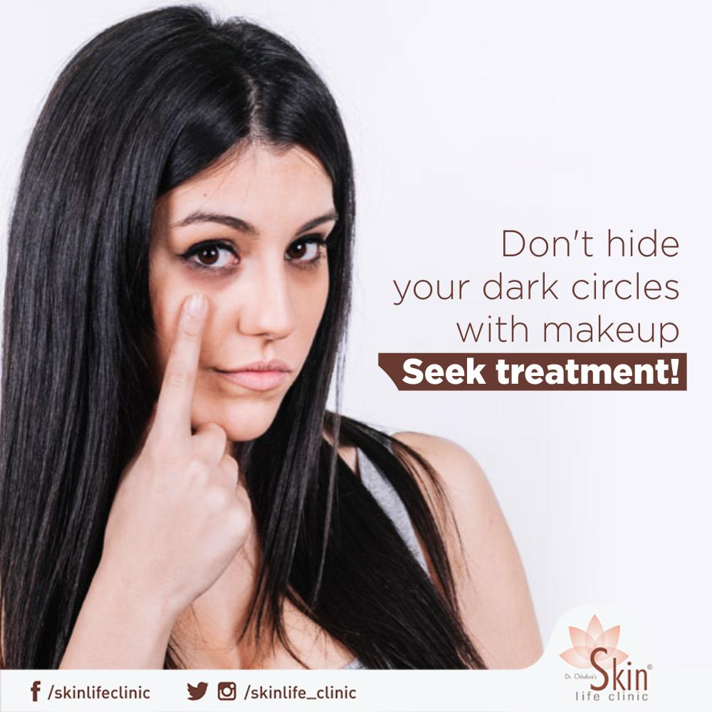Don't let dark circles steal your glow. Get rid of them with dark circle removal treatment. Book your appointment now: 9926580465.  #DarkCircles #Treatment #DrChhabra #Skinlife #Clinic