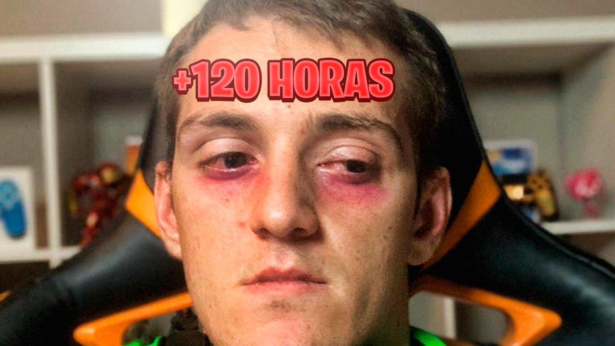 Torete está a punto de hacer 5 DÍAS en DIRECTO.  Esta es su cara.  Ayuda para este hombre, por favor 🙏🏻 https://t.co/W58m8H0L5R https://t.co/73XghTloyt