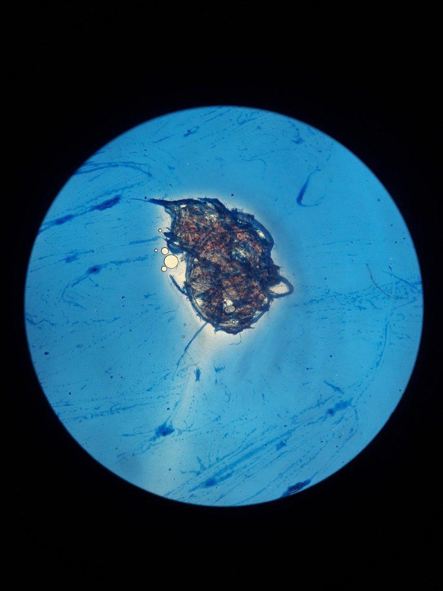 olha como é bonito o fungo que provoca as crises de renite/sinusite de vocês