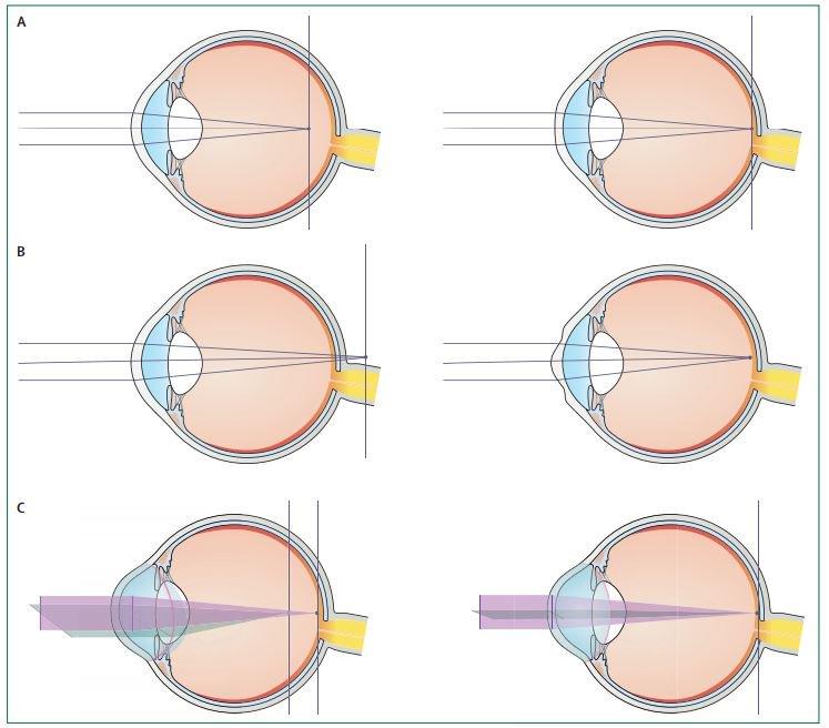 vizuális torna myopia