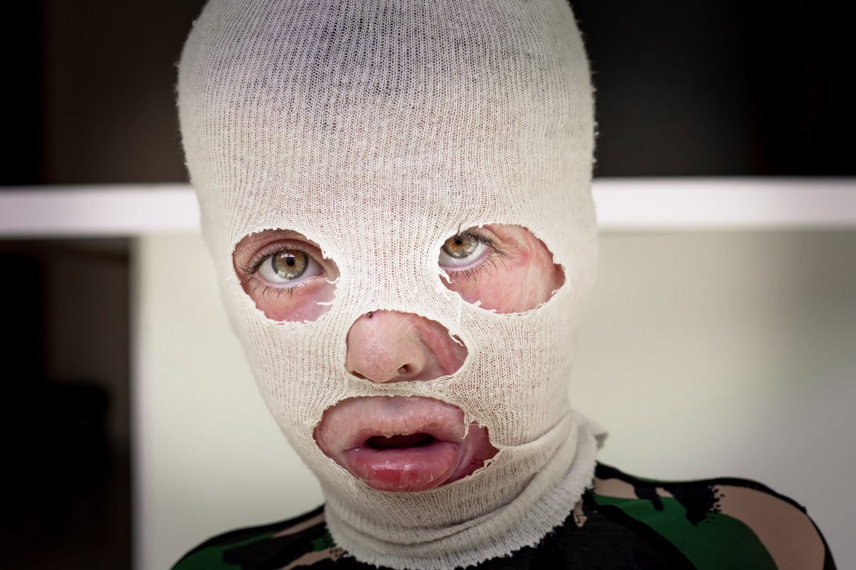 Please do what you can today to help Syrian refugee Sami. He was badly burnt when a faulty heater set fire to his mattress, covering the young boy in burns. He's going to need so much treatment in order to lead a healthy life again. Please help! http://bit.ly/2zHp0oE