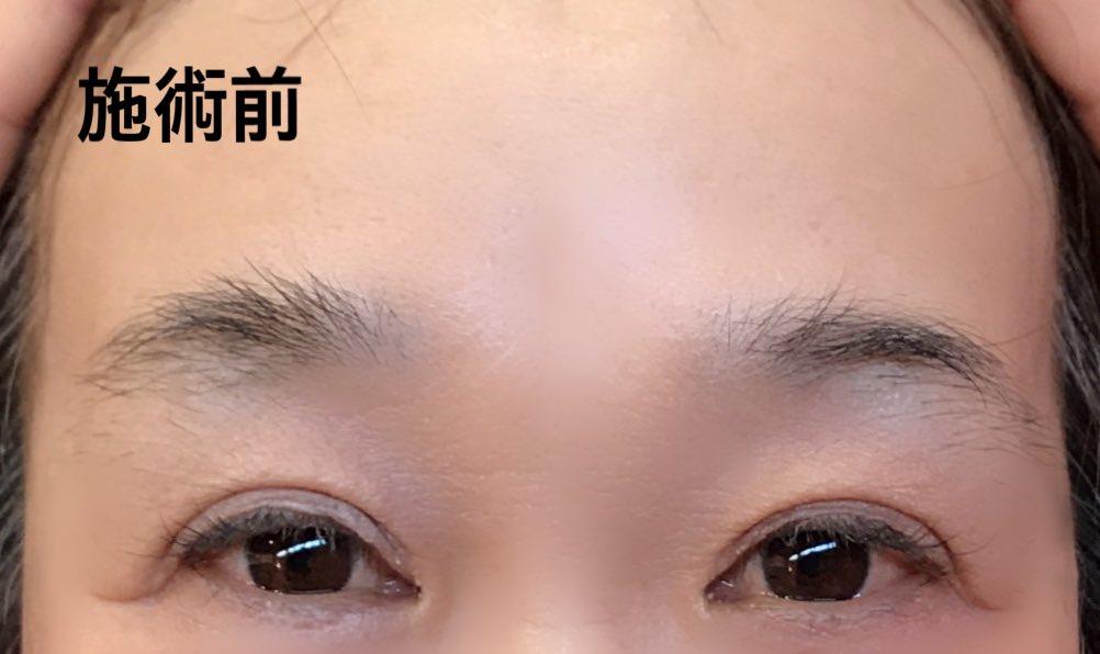 骨に合わせた眉の形に脱毛してして整える眉エステ3週間ボウボウにして我慢したけど 美人まゆになれたかな?(笑)足りないところは眉型シートがあって専用のアイブローで整えるんだって❗️毎日 自分でできるかな~?#ココン