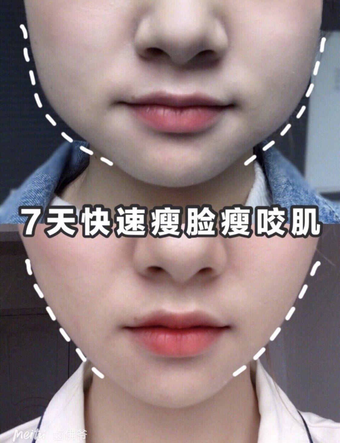 エラ張り解消マッサージ✨ 1つのステップを1分ずつ!!1日5分で小顔を目指そう ①輪郭と親指がそうように ②1箇所ずつ押すように ③こめかみでギュッと押す ④外側に回す ⑤老廃物を流すイメージで ⚠️しっかりボディークリーム塗ってね!! #紅美女 #中国ダイエット