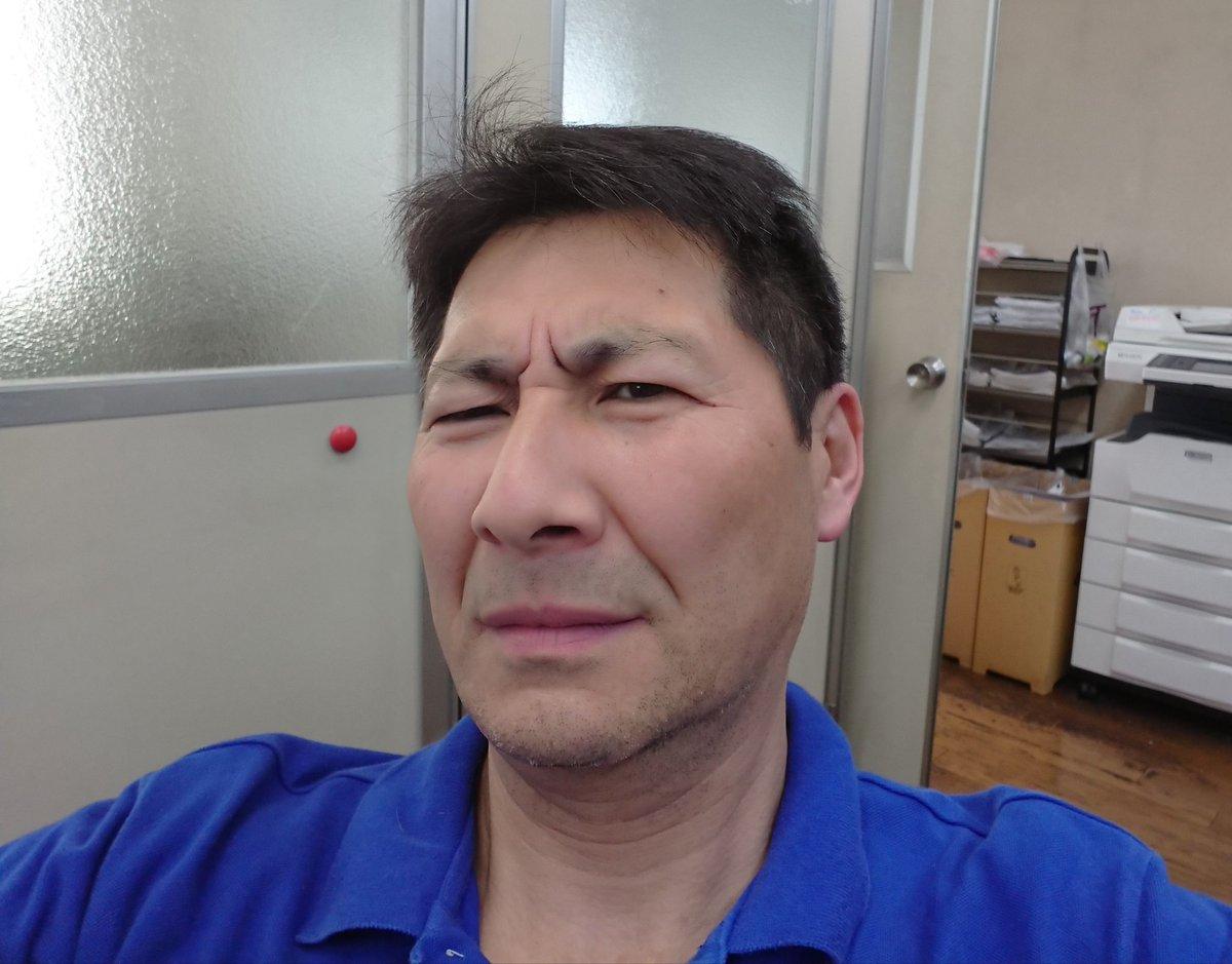 元気ですかーッ!?本日は大事件発生!なんと!アゴのヒゲが、、、、、、円形脱毛症!おいおいって感じです。皮膚科の先生の診断ですので間違いない!ですが!!!これぐらいでは負けません!