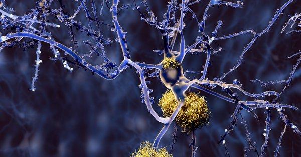 #Alzheimers Map Shows Where #Epigenetics Takes Wrong Turn https://www.genengnews.com/news/alzheimers-map-shows-where-epigenetics-takes-wrong-turn/… via @GENbio   #dementia