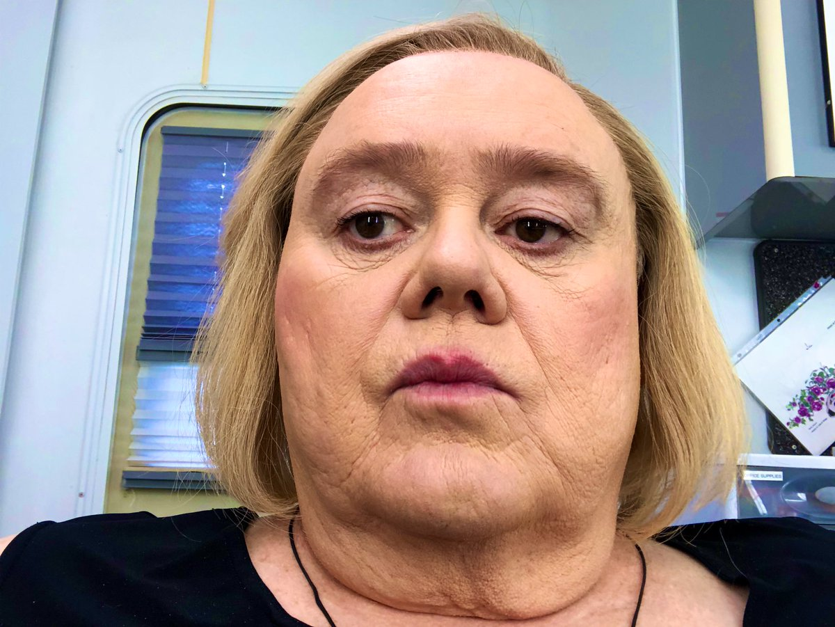 Louie Anderson weight loss