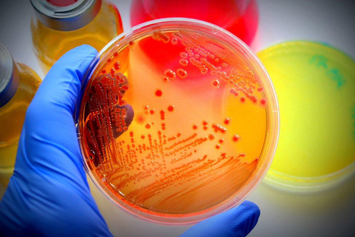 The development of antimicrobial drugs like antibiotics, #antivirals, #antifungals, and #antiparasitics to #treat #hazardous infections has been one of the most important medical achievements in human history.  Microbiology 2019 Spain For more information: https://lnkd.in/fT2MVyQ