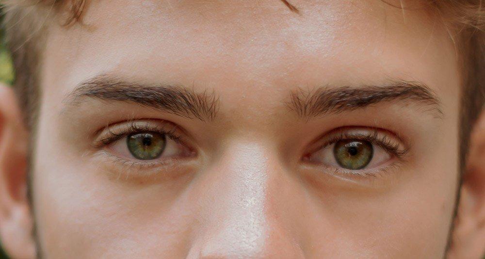 054f4668cf Βλεφαρόπτωση - Ένα αισθητικό άλλα και λειτουργικό πρόβλημα!  μάτια  όραση   υγεία