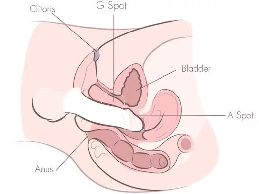 Vaginal bleeding between periods