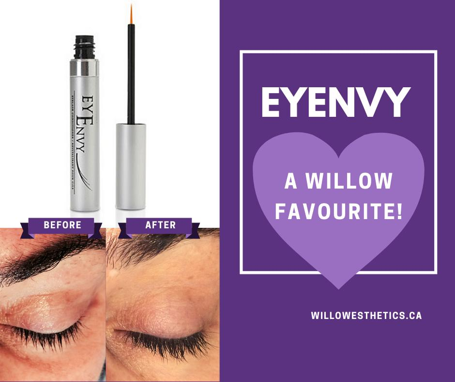 225287b505e EyEnvy is designed to help hydrate and nourish the eyelashes... as well as