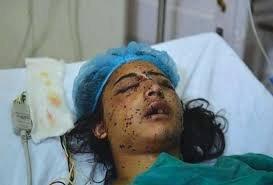 بھارتی قابض فورسز کا نہتے کشمیریوں پر پیلٹ گن سے ظلم و ستم عروج پر  جانے کب ہوں گے کم اس دنیا کے غم...!!!