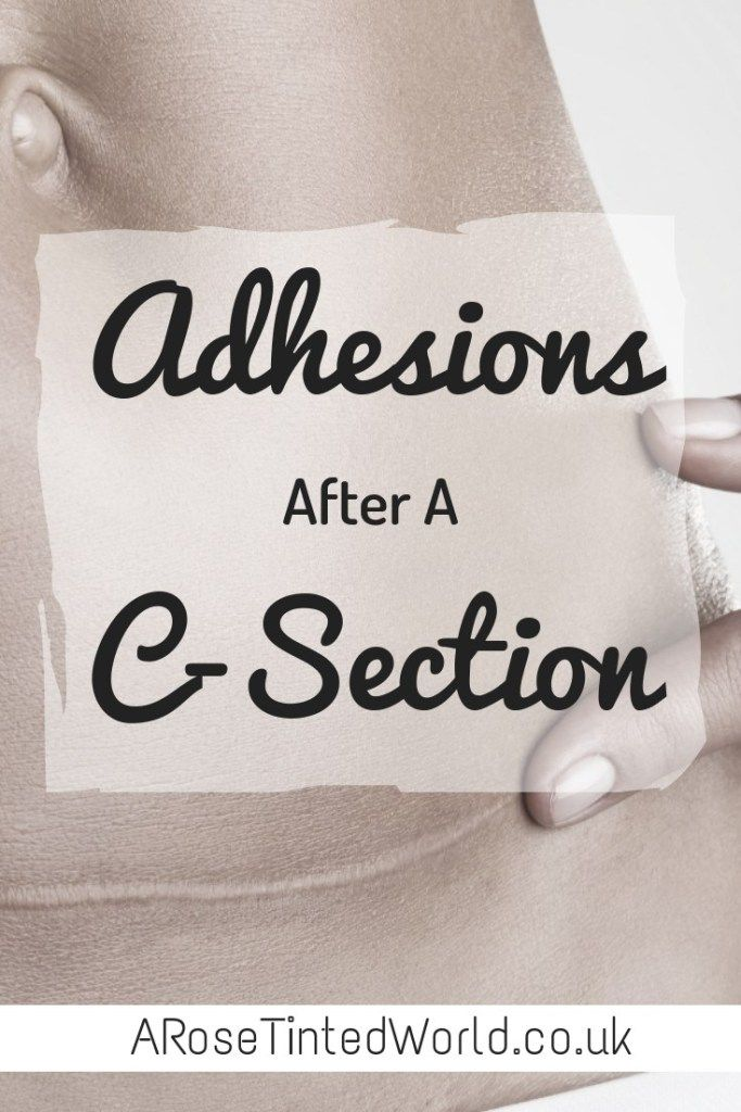 *Updated post* How to tell if you have Adhesions After A C-Section ⋆ A Rose Tinted World https://buff.ly/2S9Mpp4  #csection #caesarean #maternalmhmatters