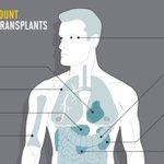 Image for the Tweet beginning: Prijzen van transplantaties in de