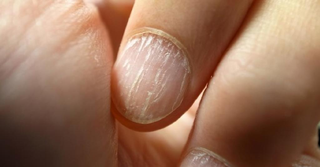 """WebMD on Twitter: """"Brittle or thinning hair, dry and flaky skin and deep  ridges on your fingernails are all possible signs of not eating enough  protein. Learn more: https://t.co/7A2DAELyUw… https://t.co/1Hn7OClOXh"""""""